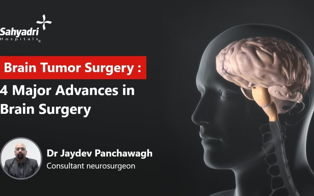 4 Major Advancements in Brain Surgery