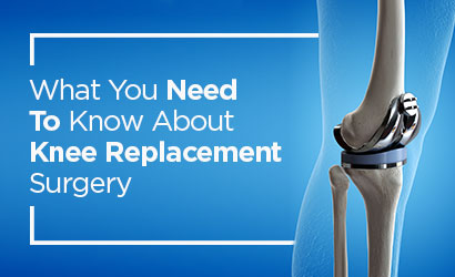 What You Need To Know About Knee Replacement Surgery