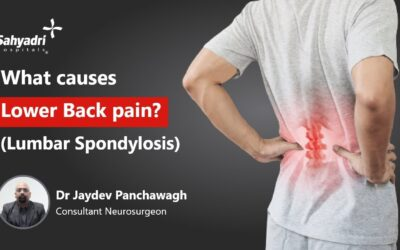 What Cause Lower Back Pain? (Lumbar Spondylosis)
