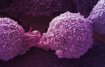 Specialization within Oncology – The Future of Cancer Care in India