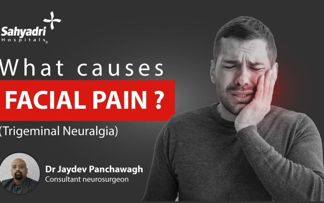 Everything You Need to Know About Trigeminal Neuralgia