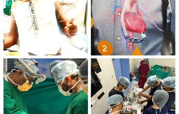 City's first successful Mechanical device implant on heart gives new lease of life to a Yemeni National