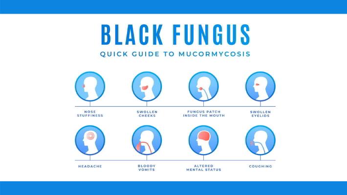 म्युकरमायकॉसिस – लक्षणांविषयी जागरुकता गरजेची