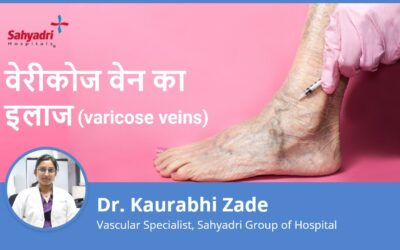 Understanding Varicose Veins and Treatment?
