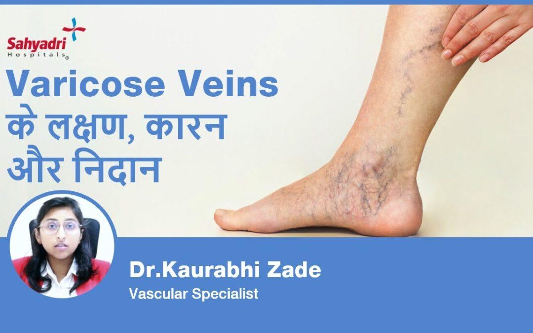 What is Varicose veins? (Hindi)