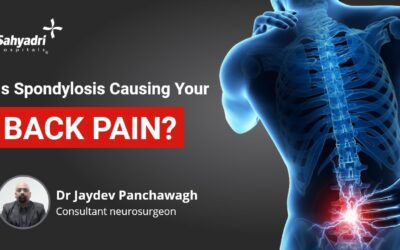 What are Spondylosis and its Causes?