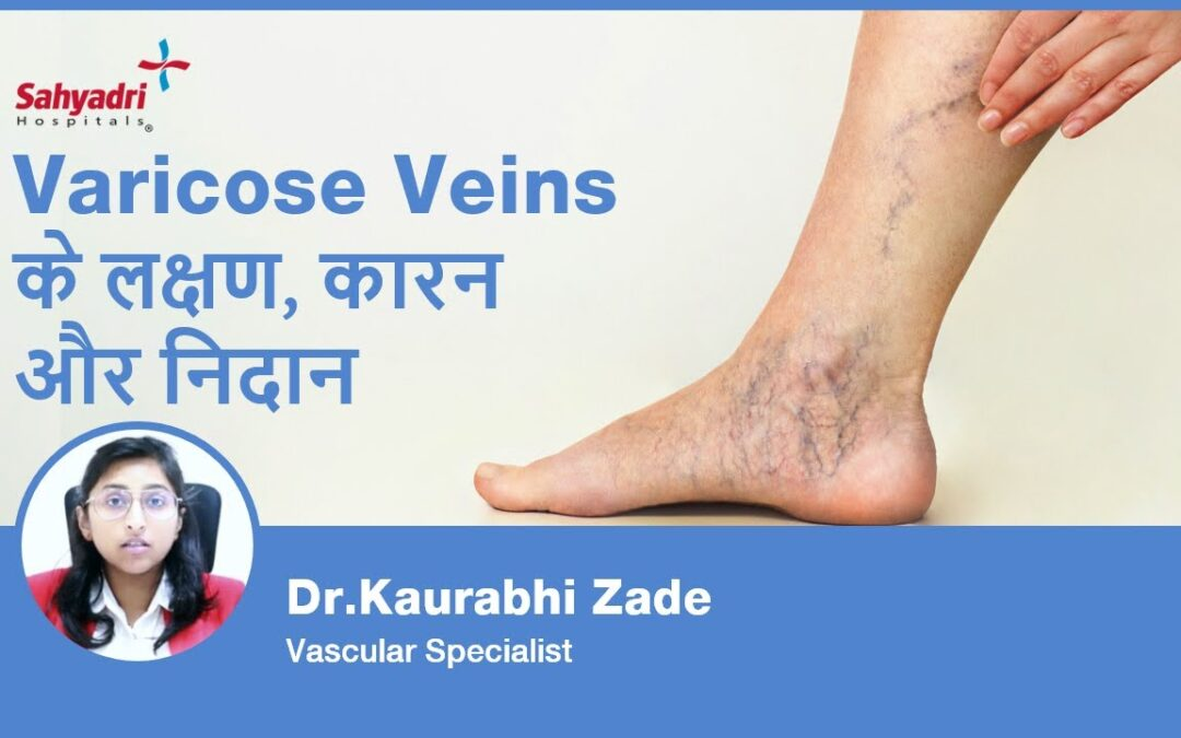 Varicose Veins : Causes, Symptoms, and Treatments?