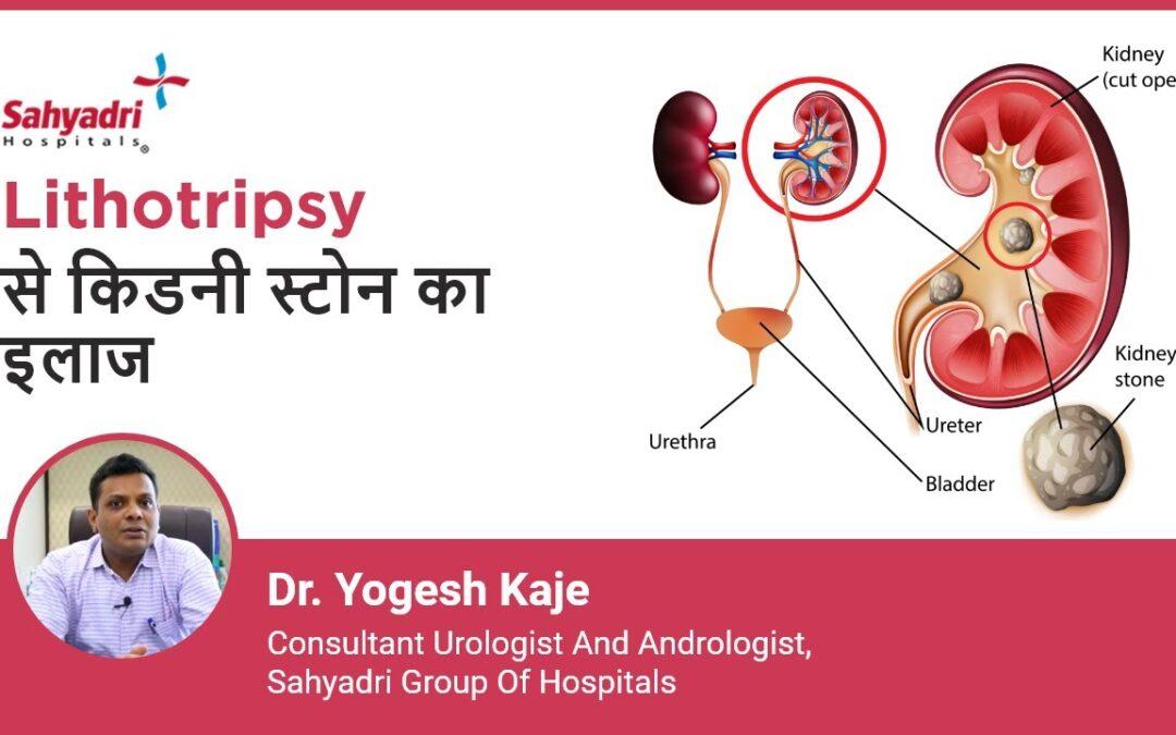 Lithotripsy क्या है और कैसे की जाती है?