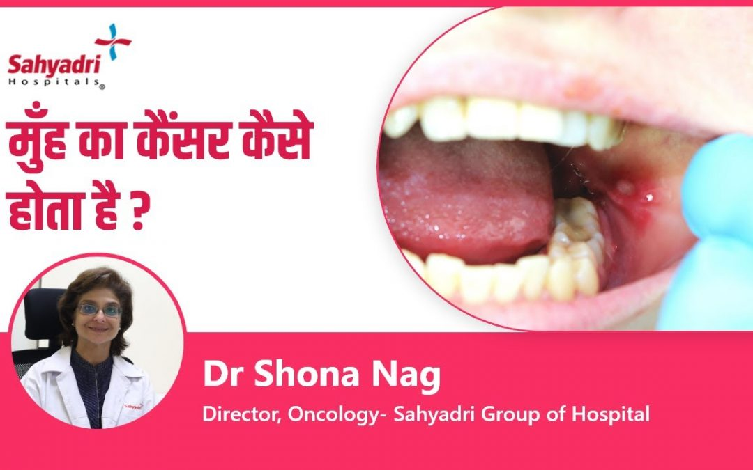 Mouth Cancer – Causes and Symptoms