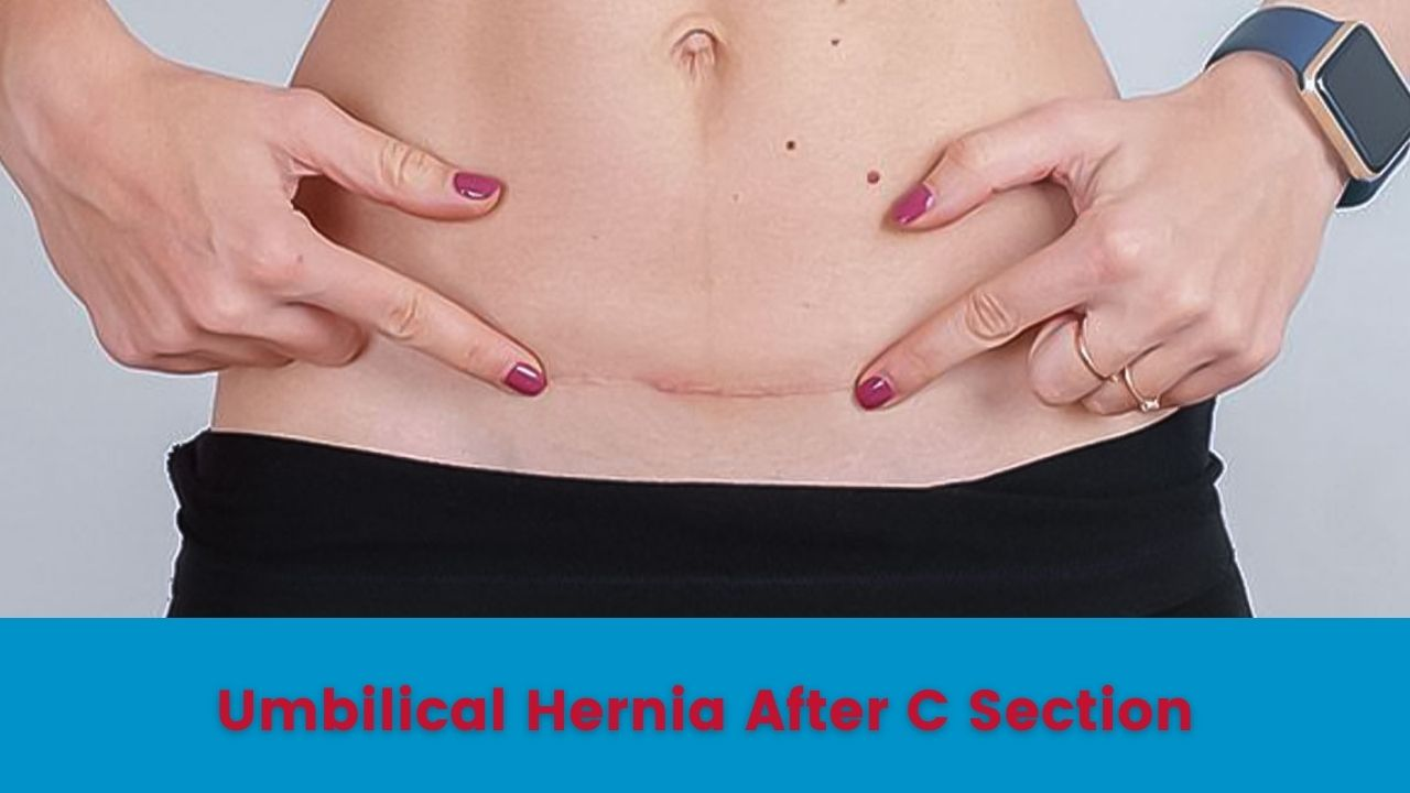 Umbilical hernia or postpartum hernia is a condition that can develop among women who had a C-section delivery. However, there are several reasons why a doctor recommends a caesarean delivery.