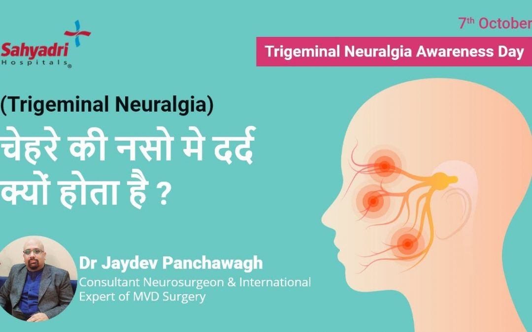 What Are the Cause of Trigeminal Neuralgia?